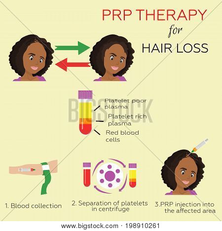 Platelet rich plasma injection. PRP therapy process. Female hair loss treatment infographics. beautiful African American woman baldness cure