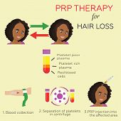 Platelet rich plasma injection. PRP therapy process. Female hair loss treatment infographics. beautiful African American woman baldness cure poster
