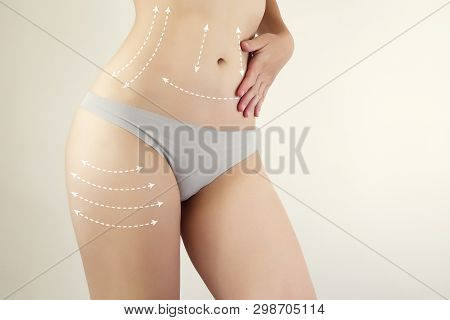 Female Figure Highlighted With Arrow Symbols / Liposuction Marks / Anti-cellulite Therapy