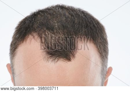 Hairloss In Young Age Theme. Head With Bold Spots