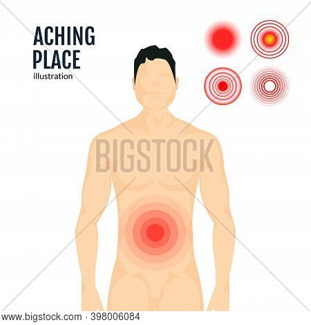 Vector Pain Target Hurt Red Circle. Pain Marker On Body