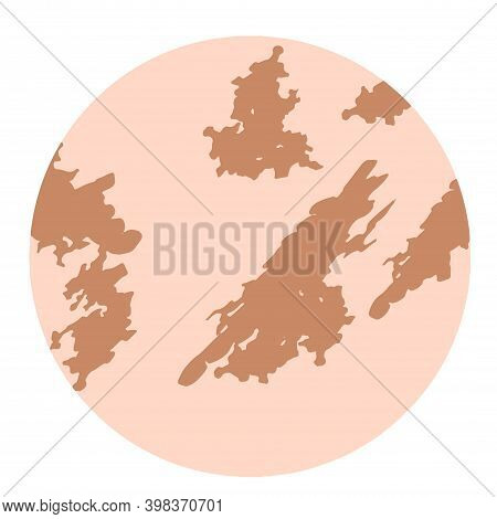 Pigmentation On The Skin Background. A Pigmented Spot On The Skin Of The Face. Illustration