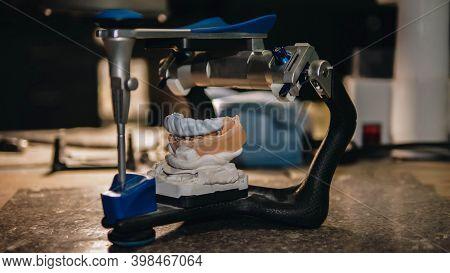 Dental Prosthetics, Model With Teeth. Apparatus For Dental Prosthetics. Plaster Model Of Teeth. Dent