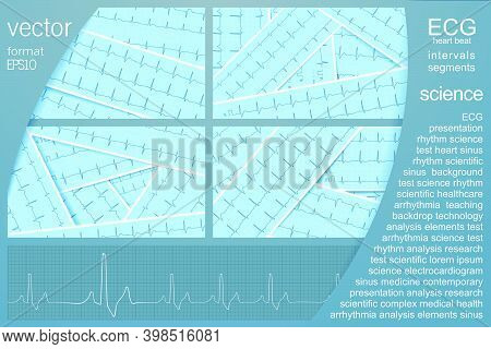 Ecg Vector Background Set With Several Realistic Cardiograms With Sinus Rhythm For Medical Science A