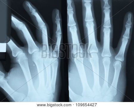 X-ray of the right hand in two projections on white background