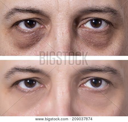 Adult's man eyes with dark rings. Treatment - BEFORE and AFTER. Skin treatment