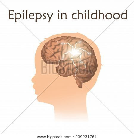 Epilepsy in infants, childhood. Vector medical illustration. Kid, baby, childhood. White background, silhouette of child head, anatomy image of brain, electrical discharge.