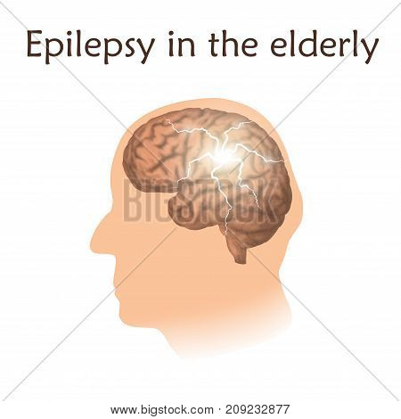 Epilepsy in the elderly. Vector medical illustration. White background, silhouette of old man head, anatomy image of brain, electrical discharge.