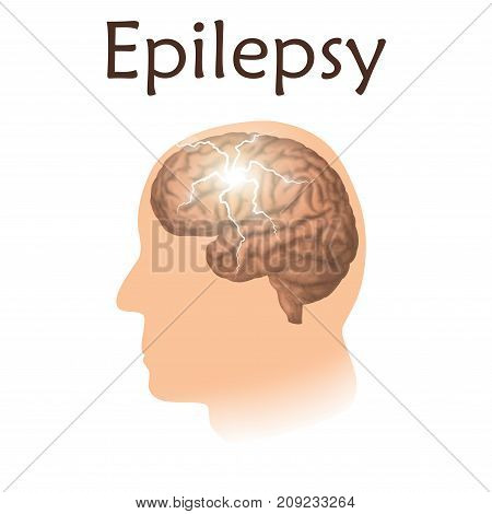 Epilepsy. Vector medical illustration. White background, silhouette of man, anatomy image of brain, electrical discharge.