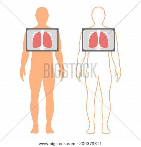 Male silhouette (contour) with the designation of the lungs.Fluorography. Chest x-ray. Vector illustration.