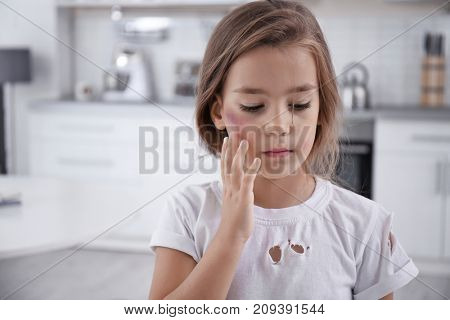 Little girl with bruise on face at home. Domestic violence concept