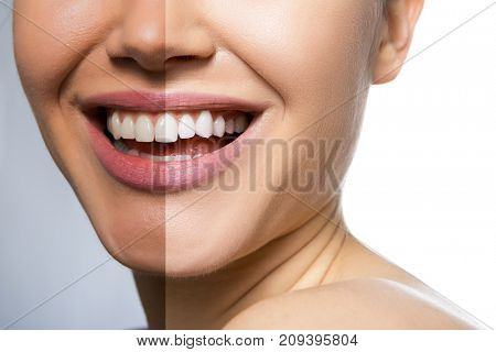 Female teeth and skin before and after care, therapy and whitening. Laughing woman mouth with great teeth over white background. Healthy beautiful female smile.