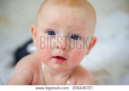 The face of a newborn baby with atopic dermatitis closeup