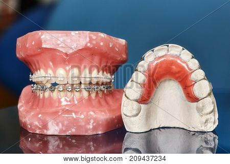 Human jaw or teeth model with metal wired dental braces orthodontic presentation tool closeup