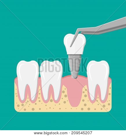 Tooth restoration. Installation of the dental implant. Dental prostheses. Artificial teeth with steel pin. Oral care, stomatology and dentistry. Vector illustration in flat style