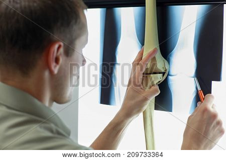 Specialist with   femur and tibial bone model watching image of knee joints at x-ray film viewer,. Diagnosis,treatment planning
