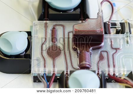 Machine For Separation Platelets From Donation With Red Blood Inside