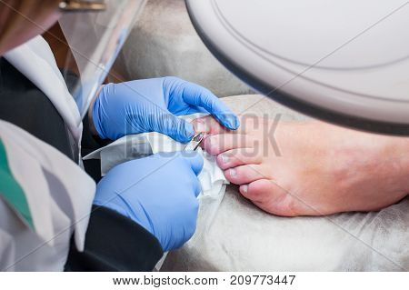 Podology Treatment. Podiatrist Treating Toenail Fungus. Doctor Removes Calluses, Corns And Treats In
