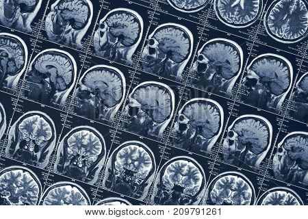 MRI brain scan or x-ray neurology human head skull tomography test, CT scan research poster