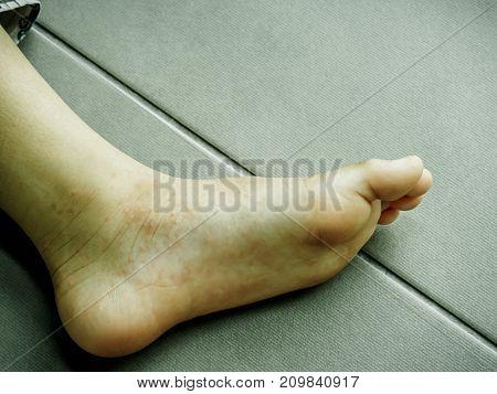 Hand Foot and Mouth disease Closeup allergic rash skin of kids foot.