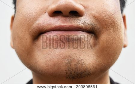 some mustache after withdrawal mustache on surface young asian man face skin do not take care for a long time