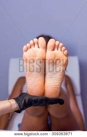 Female Hand Hold Feet With Dry Skin Before Treatment
