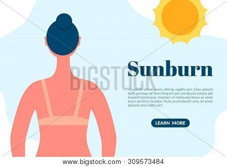 Sunburned Woman Back View Cartoon Character. Sun Tanning Danger Concept. Skin Redness Flat Vector Il