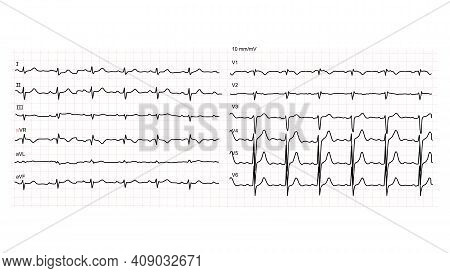 Illustration Of Normal Human Electrocardiogram Or Ekg On White Background. Vector Illustration.