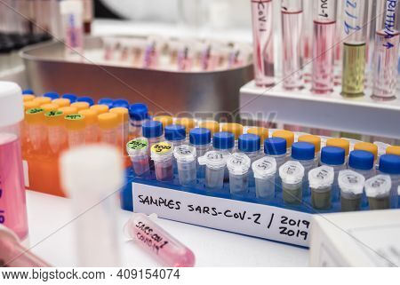 Vials With Samples Of Sars-cov-1 Prepared Cold In A Laboratory, Epiedomological Study On Sars-cov-2