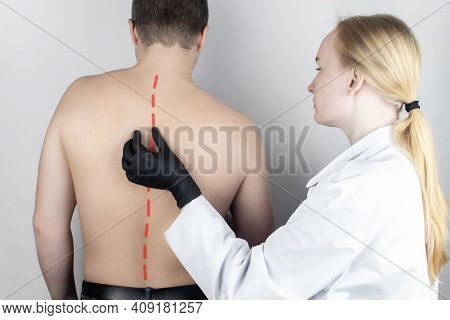 A Man At The Doctor's Appointment With Back Pain. Treatment Of Spinal Deformity And Stoop. Osteoporo