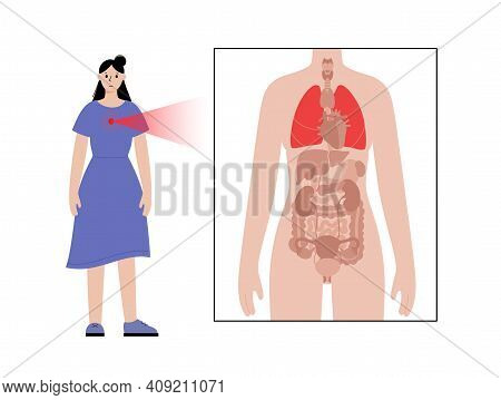Cancer Or Lungs Disease . Pneumonia, Tuberculosis, Asthma Concept. Inflammation In The Respiratory S