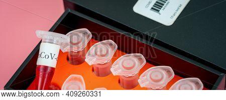 Coronavirus (COVID-19) IgM  IGG antibody diagnostic test in microbiological lab