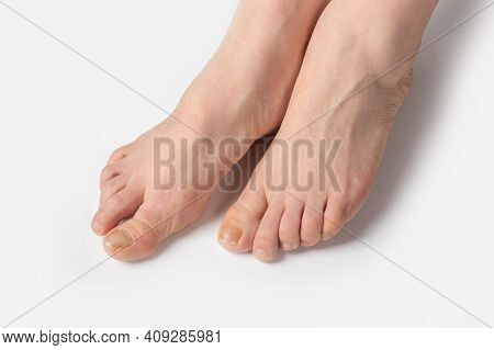 Overgrown Toenails Need A Pedicure. White Woman Feet With Nails In Need Of Pedicure. Feet Before A P