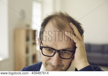 Balding Middle Aged Man Concerned About Hair Loss Touches Bald Spots On His Head