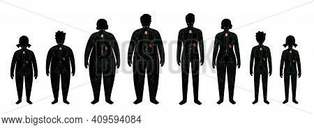 Lymphatic System, Lymph Nodes Concept. Ducts In Overweight And Normal Human Silhouette. Lymphatic Ve