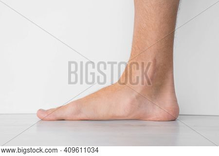 Close Up Of Mans Bare Foot With Strong Flat Feet Also Called Pes Planus Or Fallen Arches.