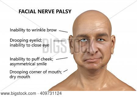 Facial Nerve Paralysis, Bells Palsy, 3d Illustration Showing Male With One-sided Facial Nerve Paraly