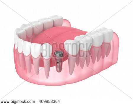 3d Render Of Jaw With Implant Screw And Healing Cap Over White Background. Dental Implantation Conce
