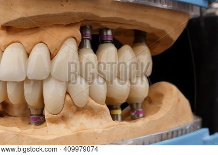 Close-up Photo Of Dental Jaws Prosthesis On Black Glass Background. Artificial Jaws With Veneers And
