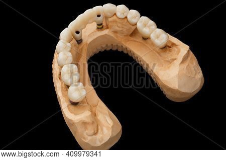 Close-up Top View Photo Of A Dental Jaw Prosthesis On Black Glass Background. Artificial Jaw With Ve
