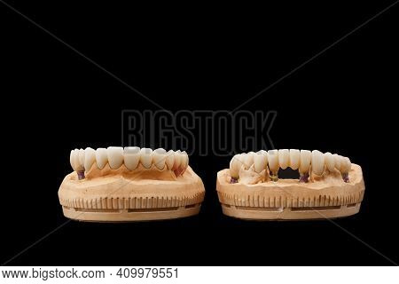 Close-up Front View Photo Of Upper And Lower Jaw Prosthesis On Black Glass Background. Artificial Ja