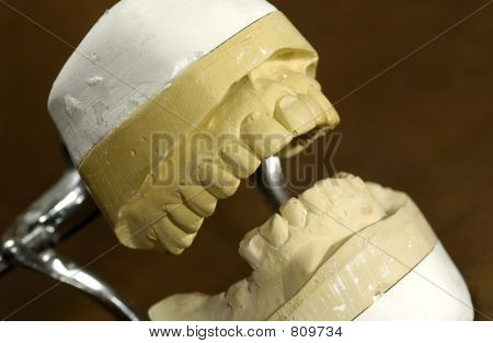 Photo of a Dental Casting / Mold - Dental Concept poster