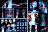 X-ray multiple disease (Stroke (cerebrovascular accident) : cva Pulmonary tuberculosis Bone fracture Shoulder dislocation Gout Rheumatoid arthritis Spondylosis Osteoarthritis Bowel obstruction poster
