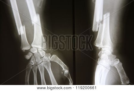 X-rays images of  bone