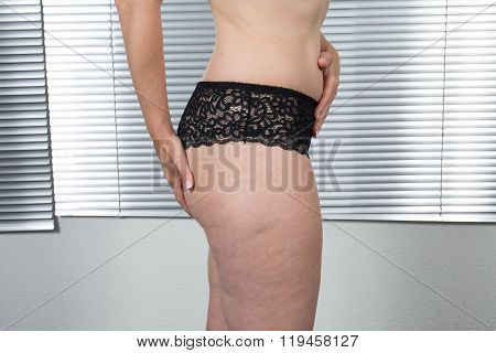 Cellulite Skin At Woman Buttocks Isolated On White.