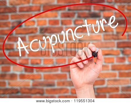 Man Hand Writing Acupuncture With Black Marker On Visual Screen.