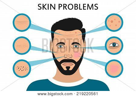 Male face skin problems. Acne and pimples, black spots, redness, dryness, circles under the eyes and wrinkles. Vector illustration for cosmetic brochure or banner, poster.