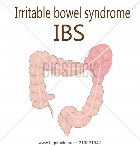 Irritable bowel syndrome (IBS) in a large intestine vector illustration