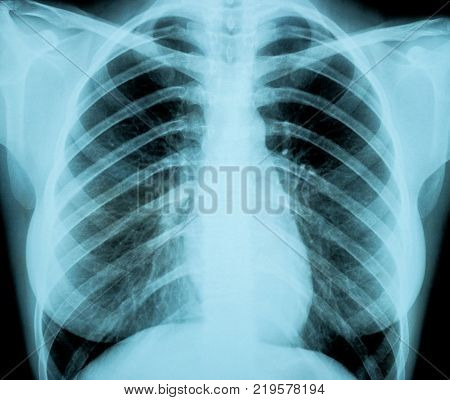 Chest of a Woman X-ray image from a human body part for a medical diagnosis . ideal for websites and magazines layouts