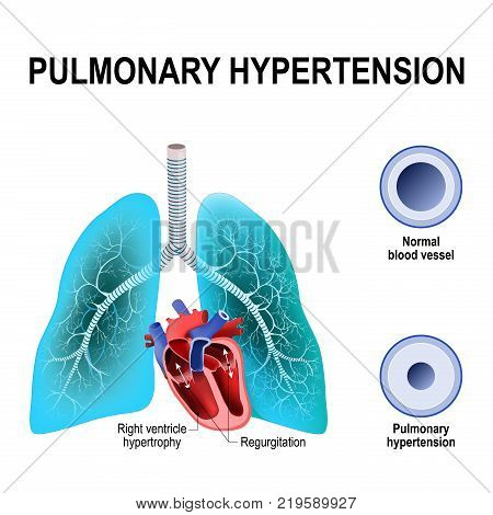 Pulmonary hypertension is an increased blood pressure within the arteries of the lungs. Cross section of the Normal and narrowing of blood vessels. Humans heart with hypertrophy of Right ventricle and pulmonic regurgitation
